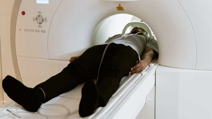 CT-Scan-for-oral-cancer