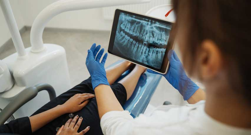 x-ray before root cannel Treatment